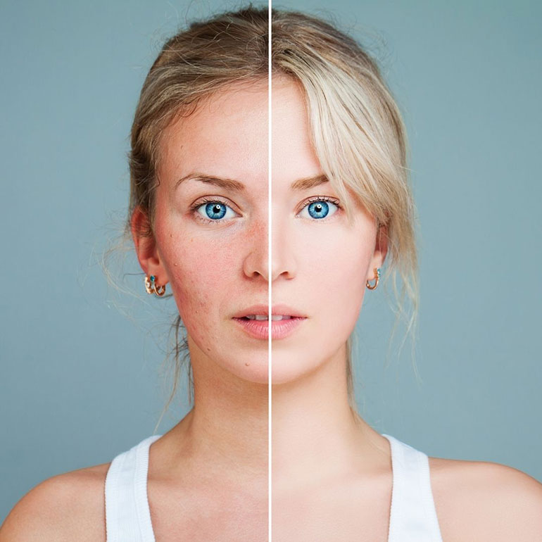 skin concerns cosmetic treatment